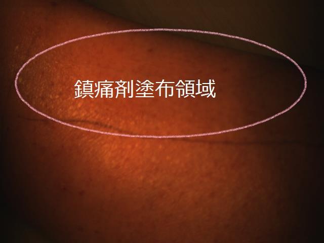 鎮痛剤塗布におけるスペクトルの影響-塗布前-